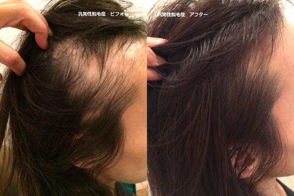 脱毛 治る 円形 前兆 症 円形脱毛症は治るのかの真実|効果的な治療法と回復の3つの兆し